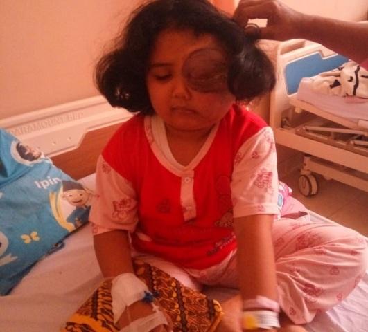 Penderita kanker mata, Dwi Fani Abzian, yang akan segera dirujuk ke sebuah rumah sakit di Jakarta. (Foto/Murizal Hamzah)